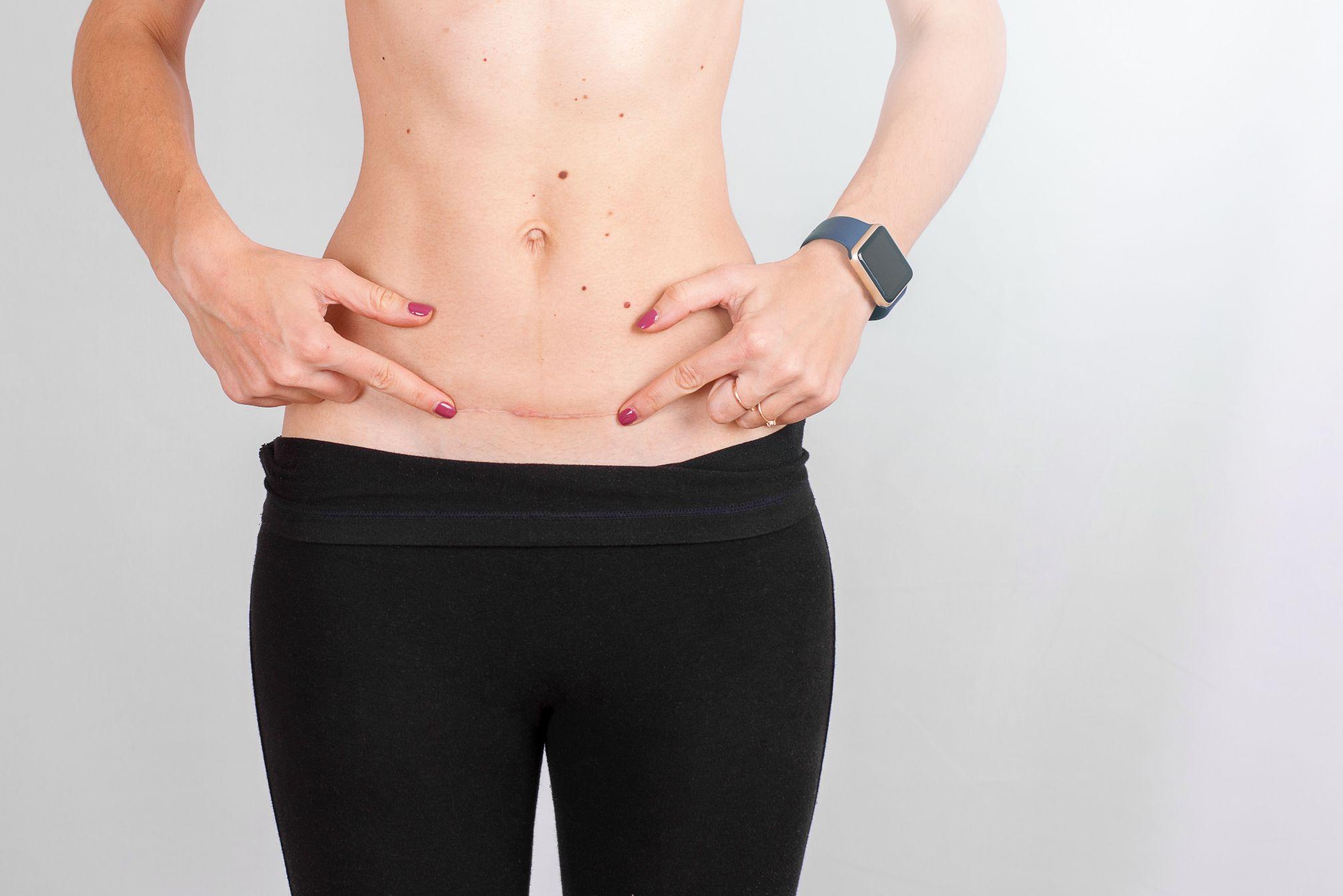 Estética 21 - Centro de estética avanzada - Camuflaje cosmético para las cicatrices - mujer estrias cicatriz cesárea