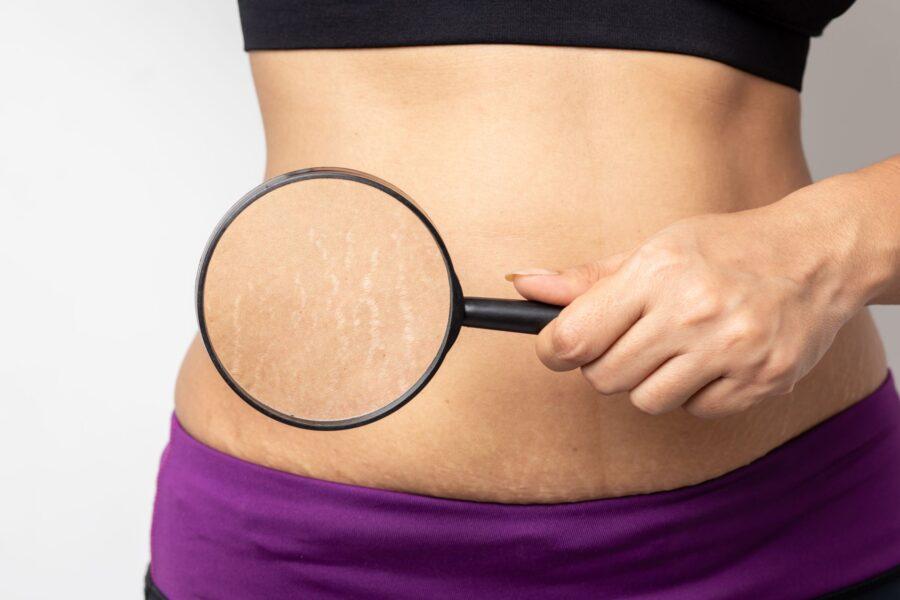 Estética 21 - Centro de estética avanzada - Camuflaje cosmético para las cicatrices - mujer estrias embarazo