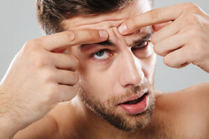 arrugas-blog-estetica-21